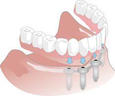 Illustration eines Implantats als Ersatz ganzer Zahnreihen